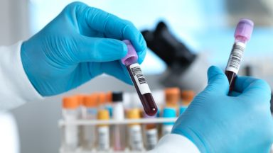 Hand holding blood sample in laboratory - stock photo.