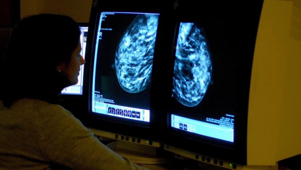 Cancer: Research was carried out by the universities of Edinburgh and Birmingham.