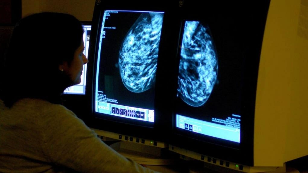 Cancer screening: Only three out of five women in the most deprived areas attended the vital checks, new figures have shown.